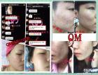 QM RHEGF 钛丝精华加盟 细胞修复微整护肤品
