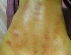 骨痛痛风肩周炎颈椎病前列腺妇科病福音