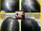 生发中药洗发水 不含硅油 针对掉发 脱发 控油调理头皮环境