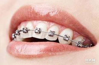 常见牙齿正畸的方法有什么呢