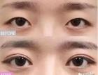 双眼皮手术5个常见问题解析