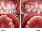 上海牙齿正畸方法及注意事项