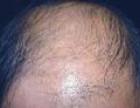 石家庄动力医院治疗脂溢性脱发