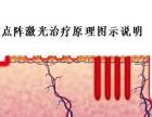 宁波半岛白癜风医院-点阵激光治疗