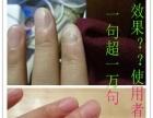 灰指甲的治疗方法、中药水治好付款