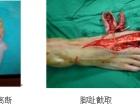 重庆长城医院拇指撕脱性离断再植步骤是