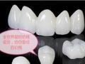 牙齿美容项目培训