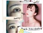重庆纳米无痕可以维持几年 双眼皮是永久的吗眼睑外翻矫正的方法
