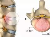 4月23日西安举办针刀临床应用与尸体解剖研修班