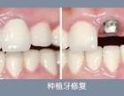 门牙缺失就选北京优贝种植牙
