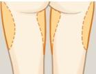 吸脂瘦大腿常见的吸脂区域