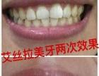 冷光牙齿美白技术加盟 个人家庭便携式