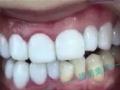 新美白牙齿技术 创业**