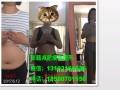 重庆北碚针灸埋线减肥有效吗