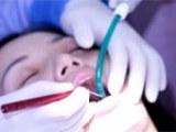 优质的牙套_江苏省专业的陶瓷自锁牙套多少钱