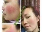 敏静根治痘痘雀斑红血丝激素脸加盟加盟