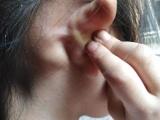治疗淋巴结肿大偏方有哪些如何治疗淋巴结肿大杨氏秘方中药调理