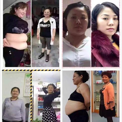 尚赫总经销商,减肥,理疗,塑性,美容 招商加盟