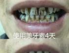 美白牙齿就用美牙素