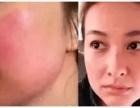 皮肤过敏怎样快速消除?兰菲丝肌肤专家为你解决肌肤问题