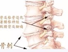 康立骨科针刀治疗骨质增生怎么样