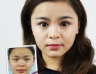 云南平复黑眼圈哪家专业选择诺美荟昆明眼部理疗美容
