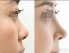 昆明隆鼻 注射隆鼻对身体有危害吗?