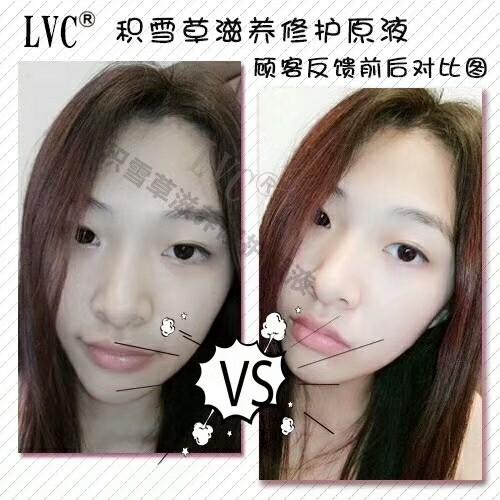 微商卖的LVC气垫是真的吗?做LVC代理找谁?