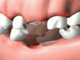 康贝佳专业经营牙齿种植、种植牙等产品及服务