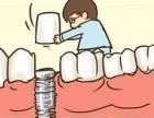哈尔滨常见的镶牙方法有哪些