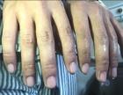 手汗症怎么办 很多手汗症的人通过使用533止汗膏喷雾找回自信