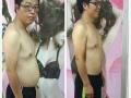 美容减肥理疗养生