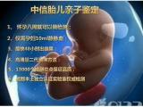 怀孕后做产前亲子鉴定方便不?产前亲子鉴定多少钱?