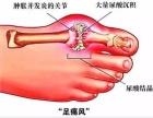 你是否对痛风有误解?揭秘痛风的四个阶段 清酸片的作用
