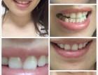 唯爱牙齿冷光美白仪有没有副作用?孕妇可以用吗?