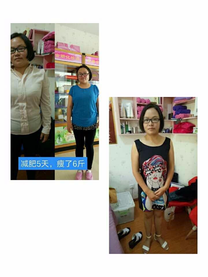 宣城尚赫专业美容减肥理疗包教技术