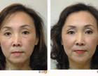 手术祛眼袋怎么样