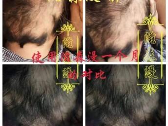 哪类人群适合使用滋森漫,可以达到止脱 生发的效果呢