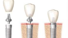 烤瓷牙产品销量步步高升,根管治疗的费用国家认准品牌