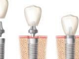 烤瓷牙医药保养品市场前景广阔,牙齿根管值得消费者信赖