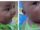 吉林省及大庆市等地曲中周问题性皮肤治疗连锁诚邀加盟