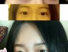 绍兴艺美双眼皮手术