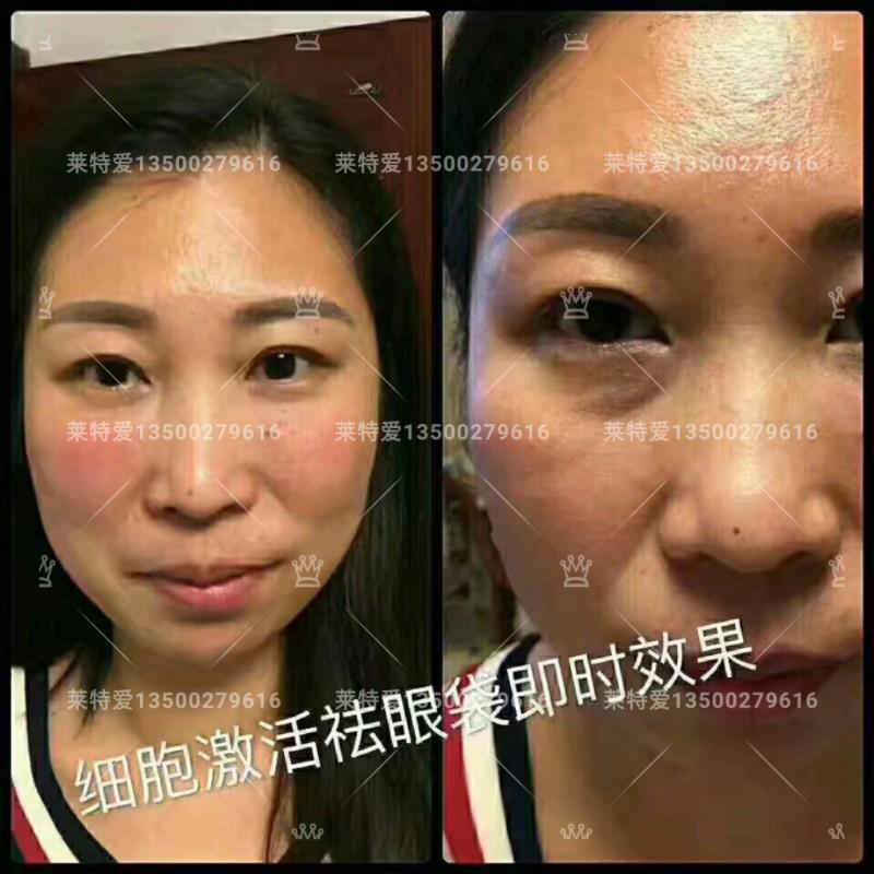 重庆綦江莱特爱量子面部精雕主要成分是什么嘟嘟唇 太阳穴