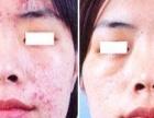 激光祛痘 专业针对化妆品药品无效青春痘