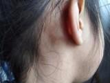 治疗淋巴结核的方法 民间楊氏偏良方理疗 淋巴结核中草药外敷