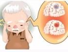 济南复元康复医院 脑梗塞患者应掌握的日常保健六法