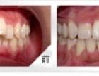 漳州牙齿矫正多少钱?