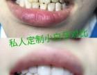你想改善拥有一口美白的牙齿吗?合肥小白牙让笑口常开