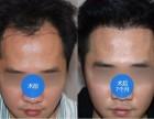 青岛植发医院:发际线种植的费用