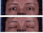 爱德丽格冯守运疤痕体质,不能做双眼皮